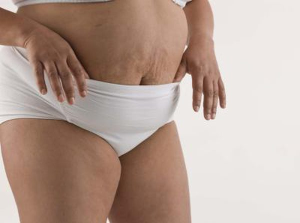 86534878_XS Eliminate Cellulite Today -- Health Strategies For Cellulite Health & Wellness  stretch marks Skin Care cellulite