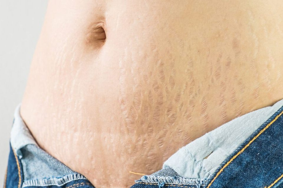 best way to cure stretch marks naturally