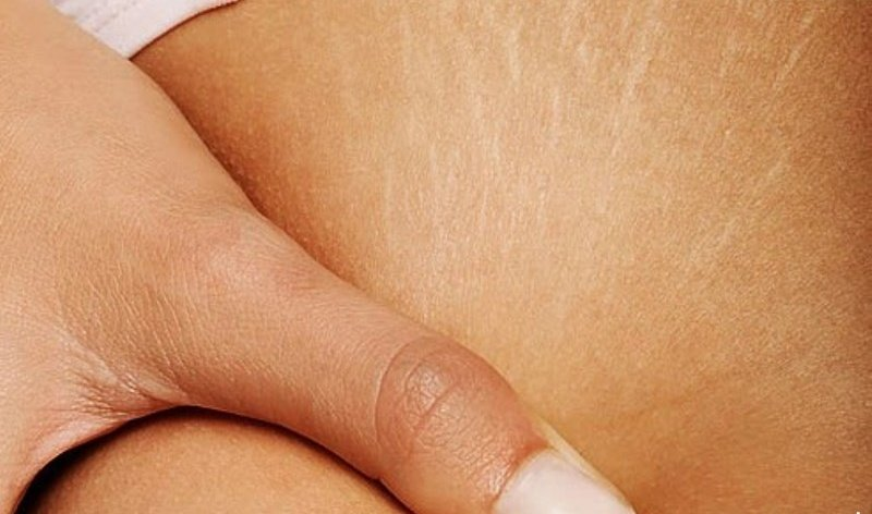cure belly stretch marks
